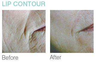 lip-contour.jpg
